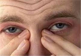بازنویسی حکایت مردکی را چشم درد خاست